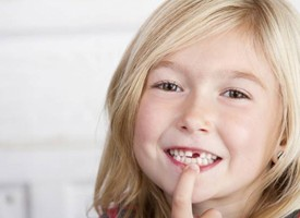 girl smiling with lost tooth