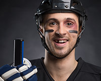 hockey player with knocked out tooth
