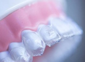 Clear aligner on dental mold