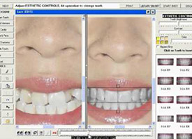 smile computer makeover