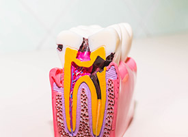 model of tooth roots