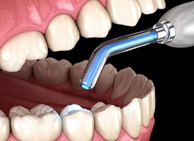 Dental filling under curing light