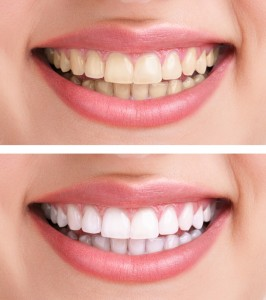 See the dentist in Canton for a brighter smile.