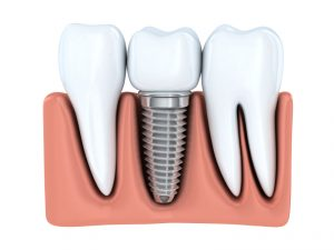 Learn more about dental implants in Canton, MI and how they can restore your smile.