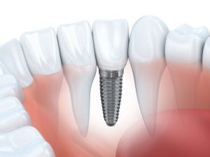 The dentist in Canton provides comprehensive implant care.