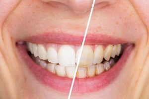 Smile before/after teeth whitening