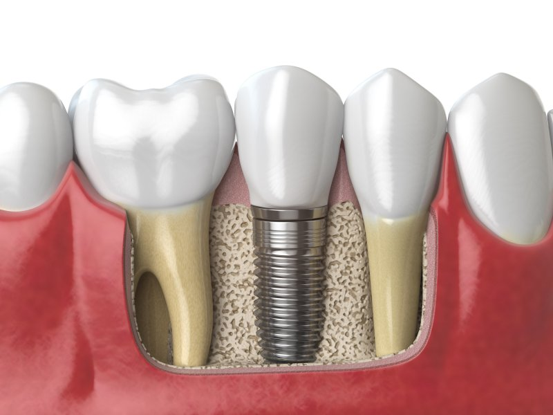 Illustration of dental implants in Canton