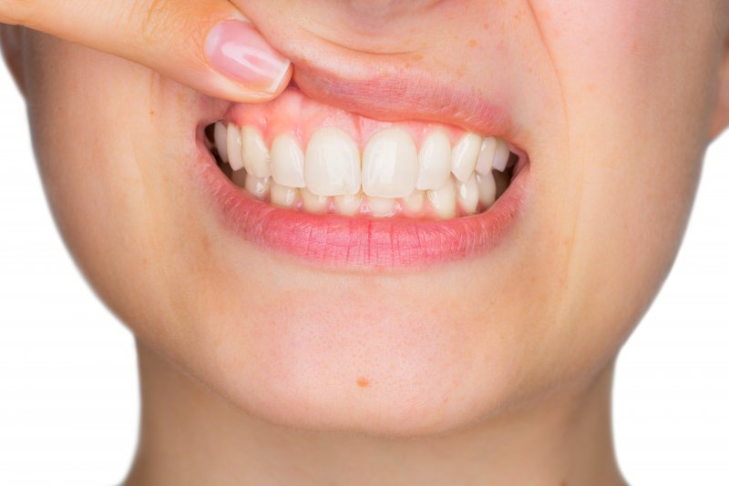 Woman showing off healthy gums